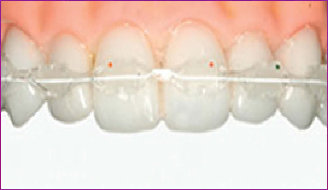 Cfast™ Quick Braces